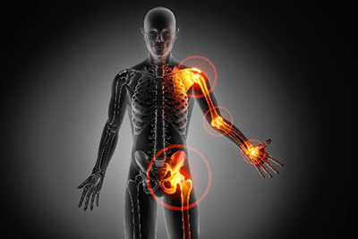 Chiropractic Provides Benefits for Arthritis Sufferers
